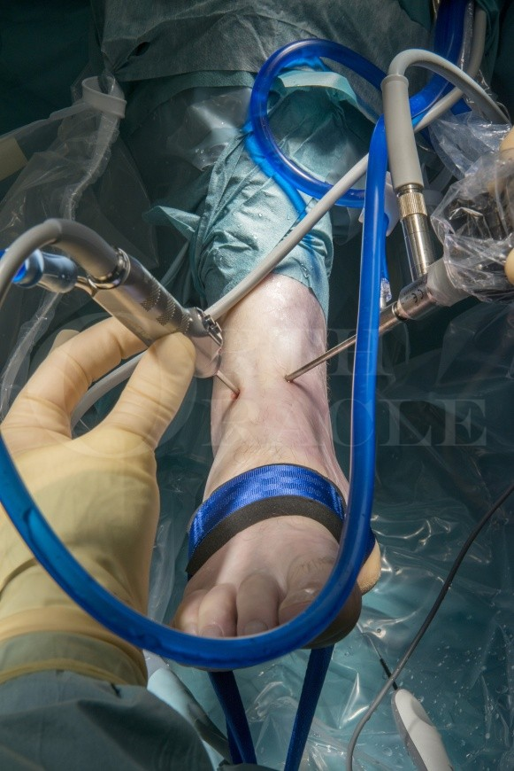 Ankle arthroscopy using the Smith and Nephew Guhl non-invasive ankle distractor