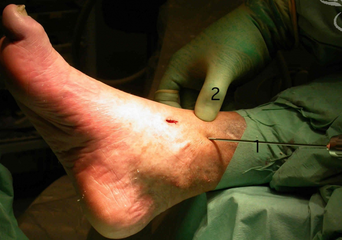 Ankle arthrodesis (fusion): Arthroscopic assisted Ankle Fusion