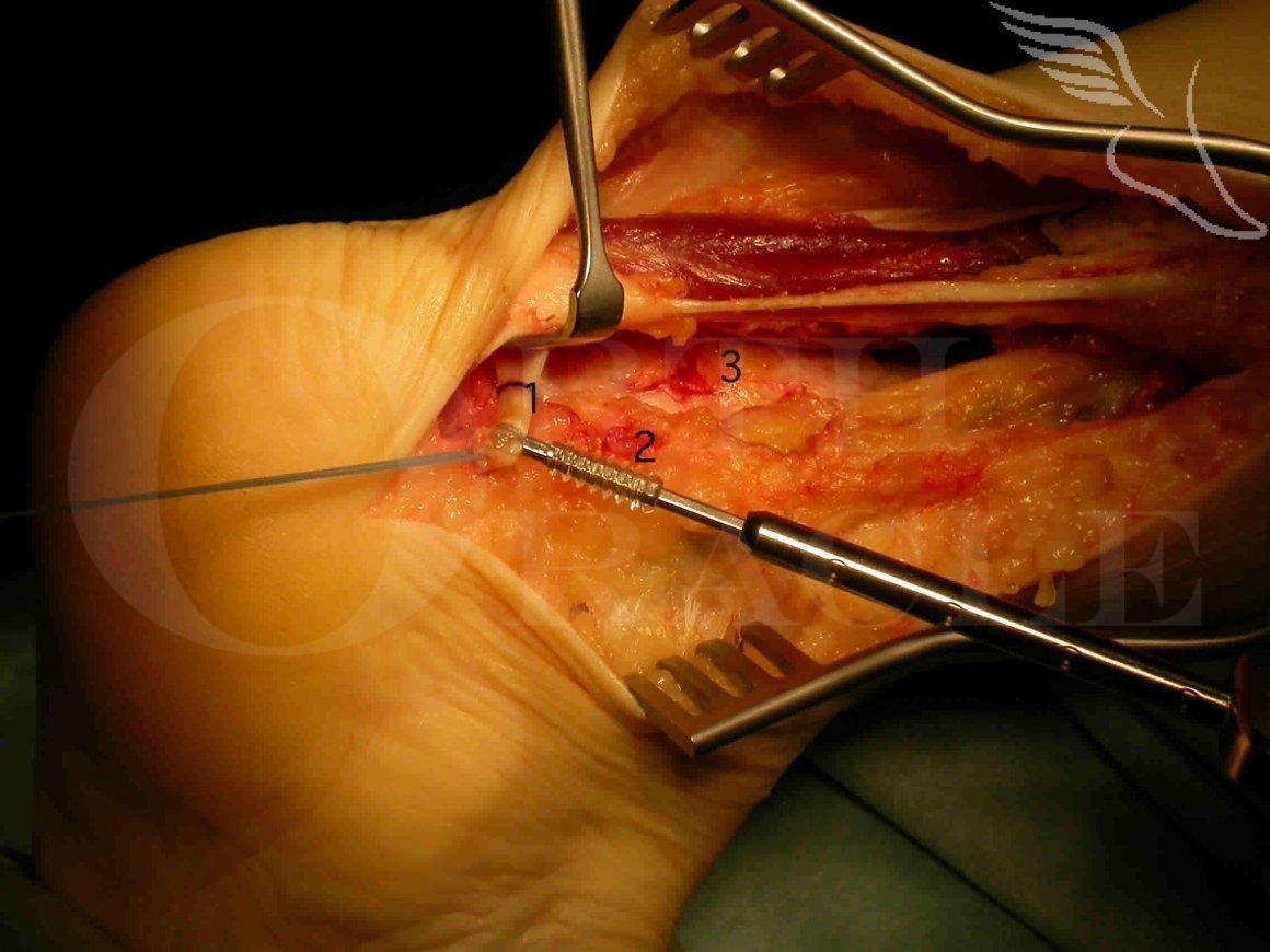 Achilles Reconstruction :Flexor Hallucis Longus tendon transfer using Arthrex Biotenodesis screw