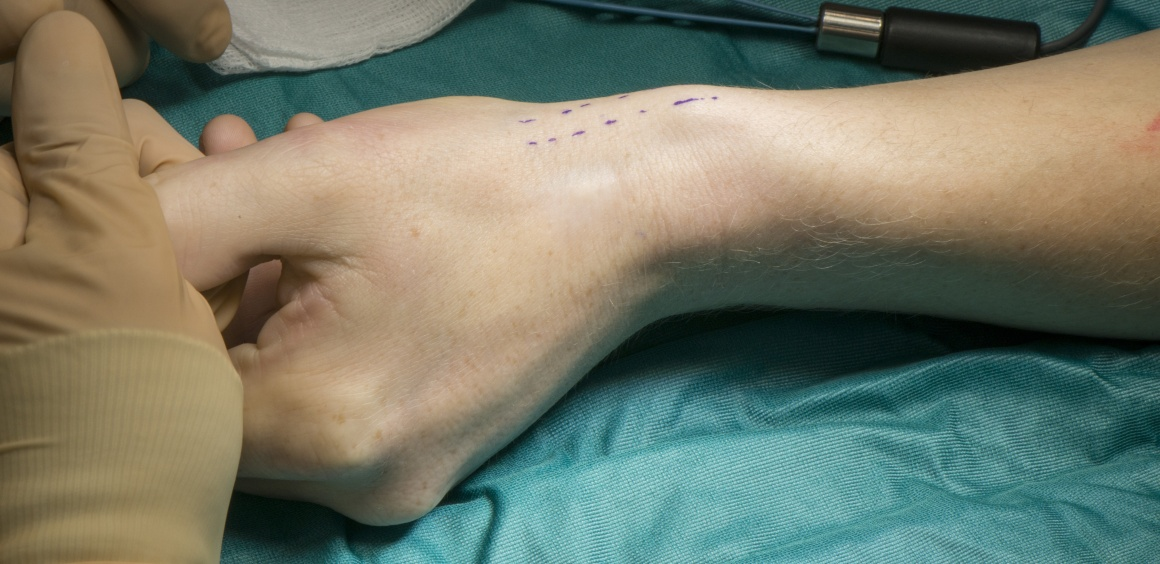 De Quervains release (first extensor compartment decompression at the wrist)
