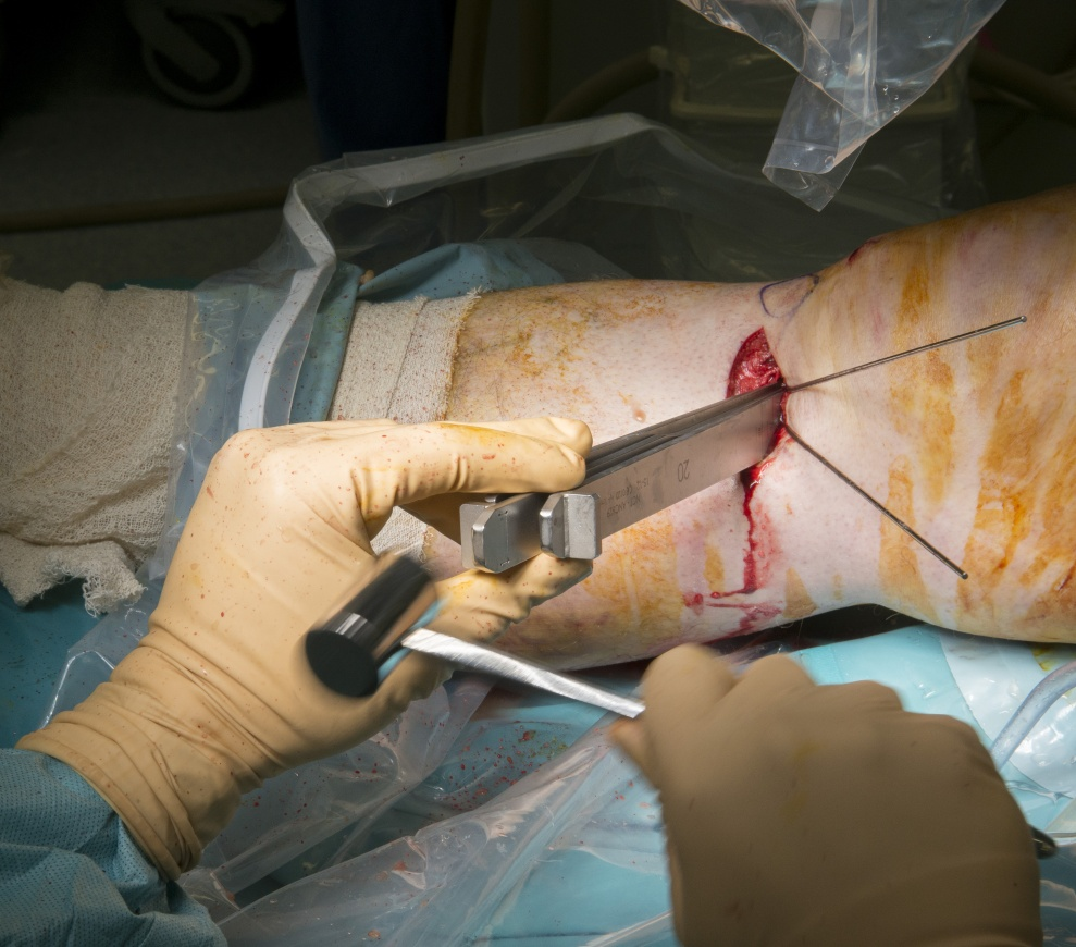 Proximal Tibial Osteotomy using a Newclip plate.