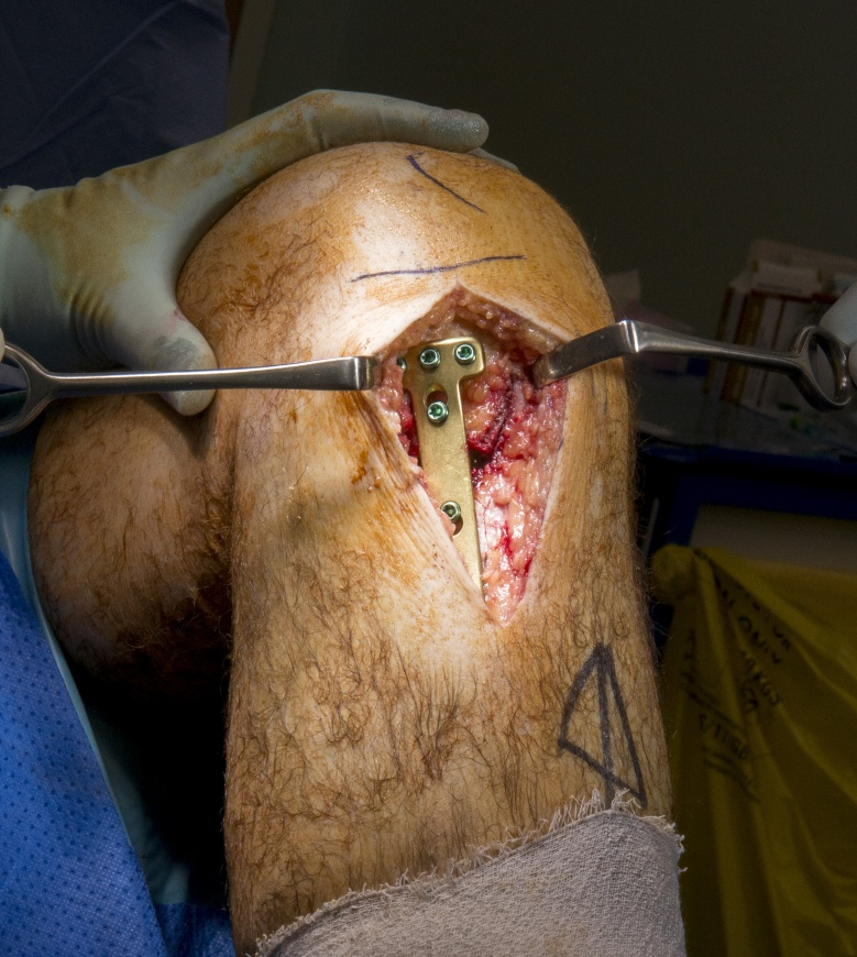 High Tibial Osteotomy (Synthes Tomofix plate)
