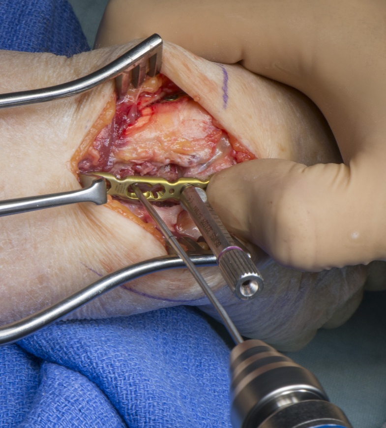 Distal Radial fracture fixation with dorsal approach and Synthes 2.4mm variable angle plating system