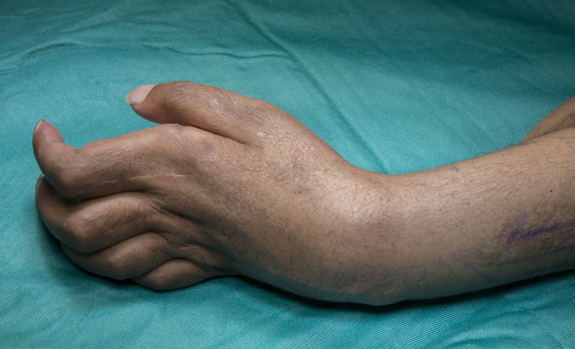 Total wrist fusion for Volkmann's ischaemic contracture (Using Synthes fusion plate)