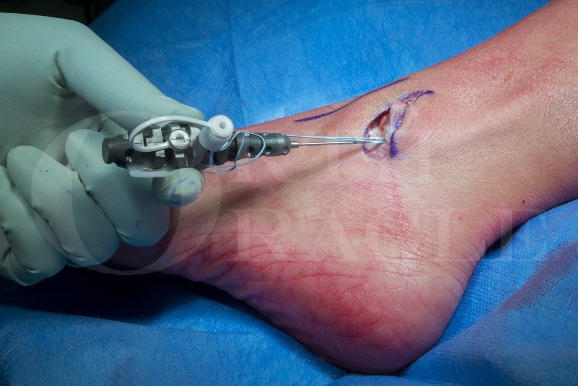 Brostrom lateral ligament reconstruction using JuggerKnot soft tissue anchor(Zimmer-Biomet).
