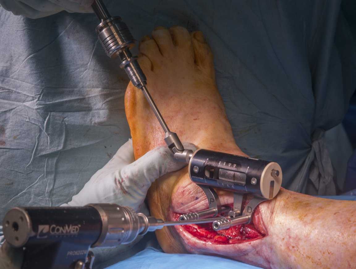 Ankle Fusion (arthrodesis): Trans-fibular approach using AnkleFix 4.0 plate (Zimmer-Biomet)