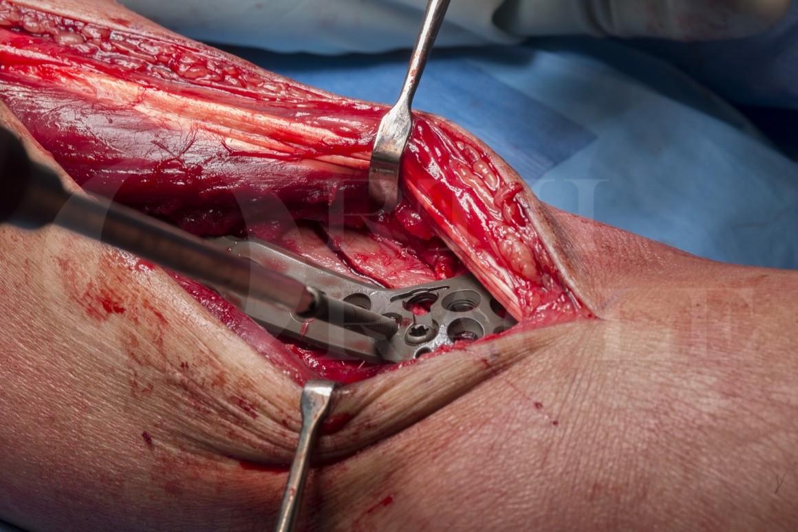 Pilon fracture: Internal fixation using Stryker AxSOS 3Ti plate.