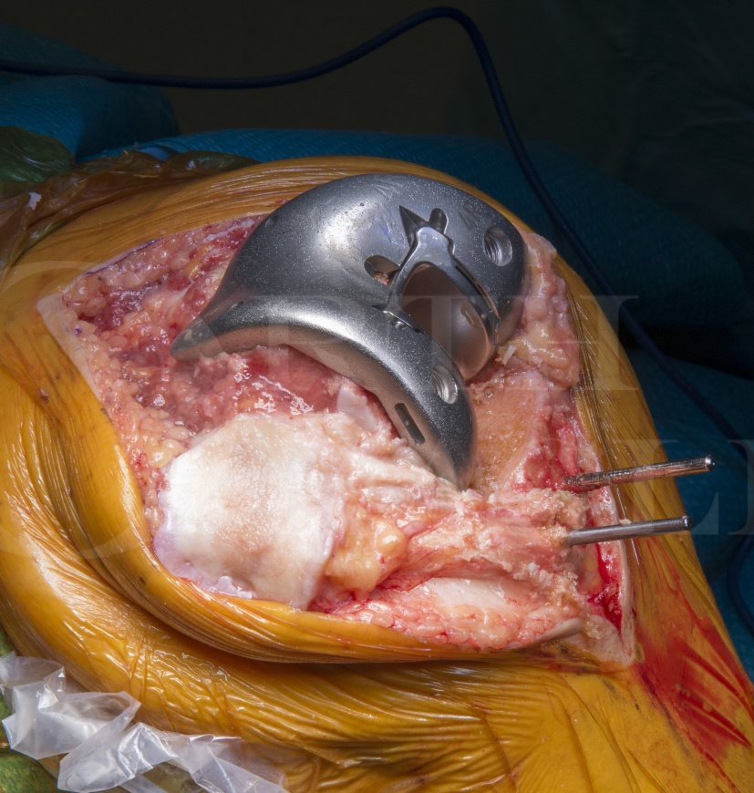 Total knee replacement (posterior stabilised): Visionaire Genesis II (Smith and Nephew)