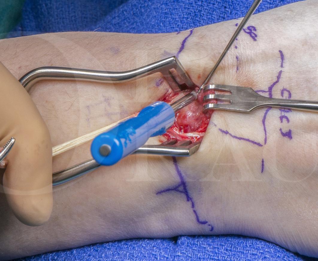 Modified Brunelli procedure : Scapho-lunate ligament reconstruction for wrist instability using Biotenodesis screw(Arthrex)