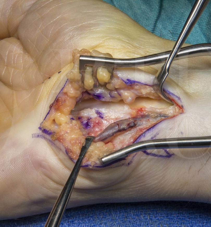 Renal biopsy procedure video