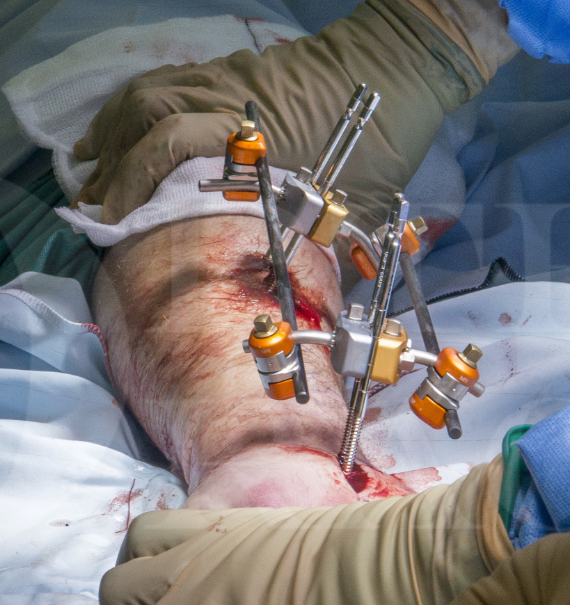 Distal radius fracture: Compound injury stabilised with Hoffman II External Fixator