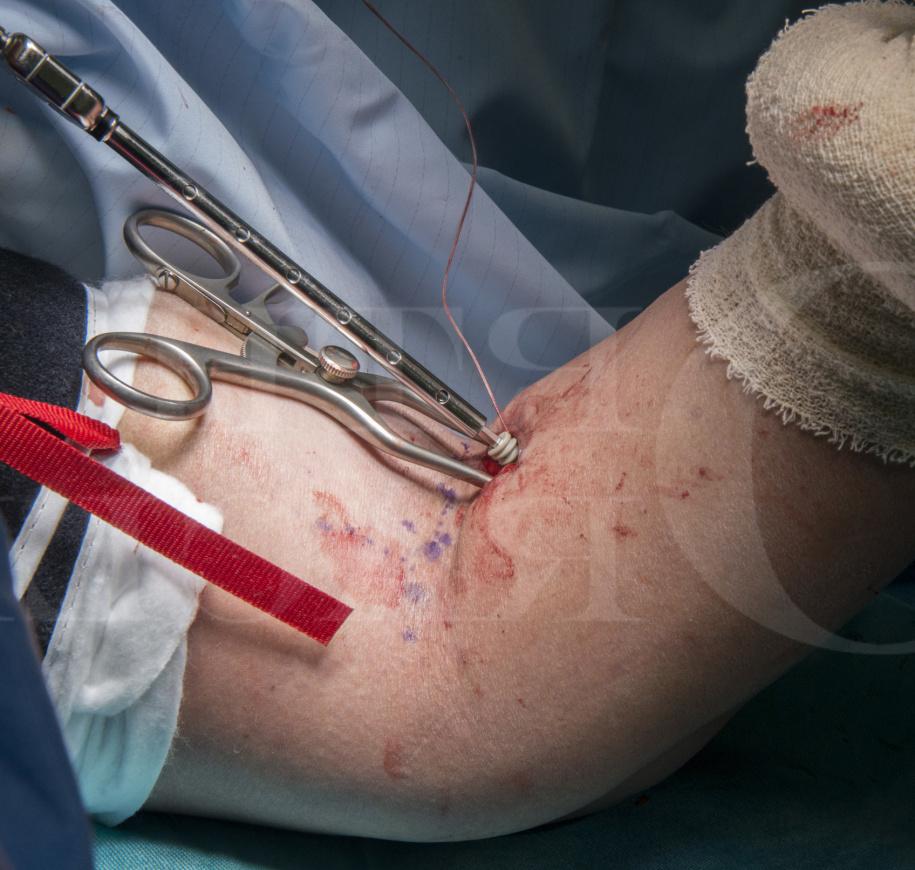 Repair Of Distal Biceps Rupture Using Arthrex Biceps Manual Guide