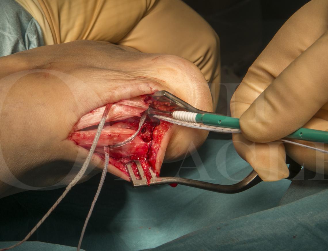 Haglunds deformity correction; Arthrex Speedbridge technique.