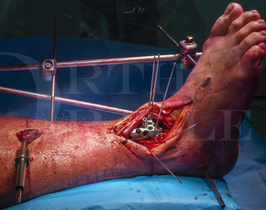 Pilon Fracture: C-type fixed with Stryker AxSOS 3 Periarticular Plating System