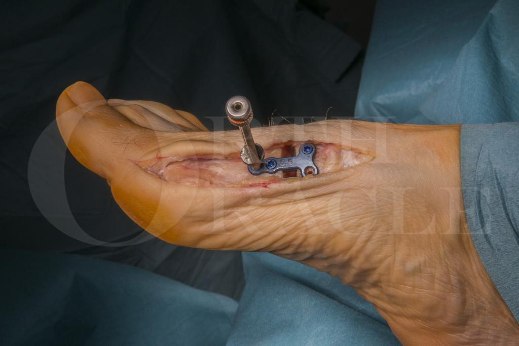 Basal osteotomy for Hallux Valgus using Arthrex Low