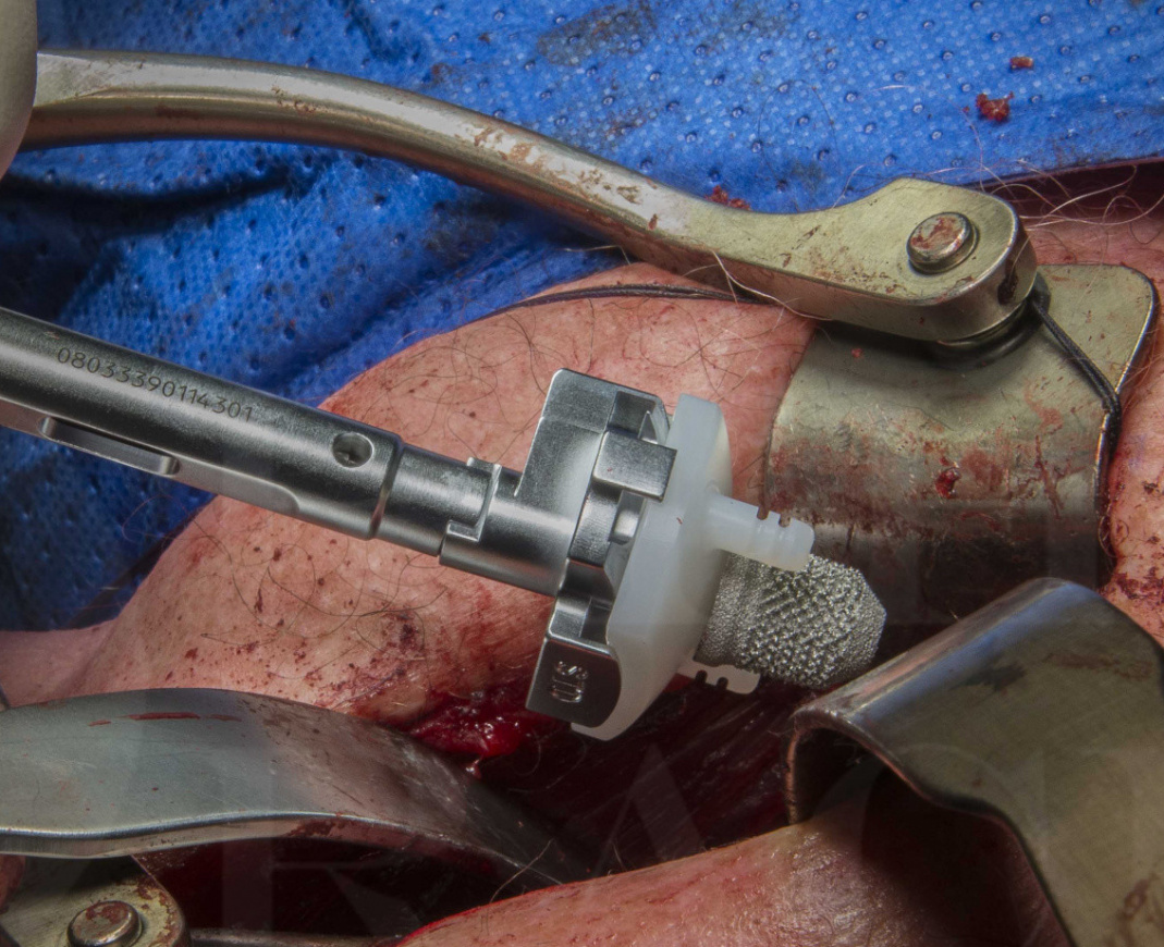 Anatomic total shoulder replacement, Lima SMR stemless humerus with TT glenoid.