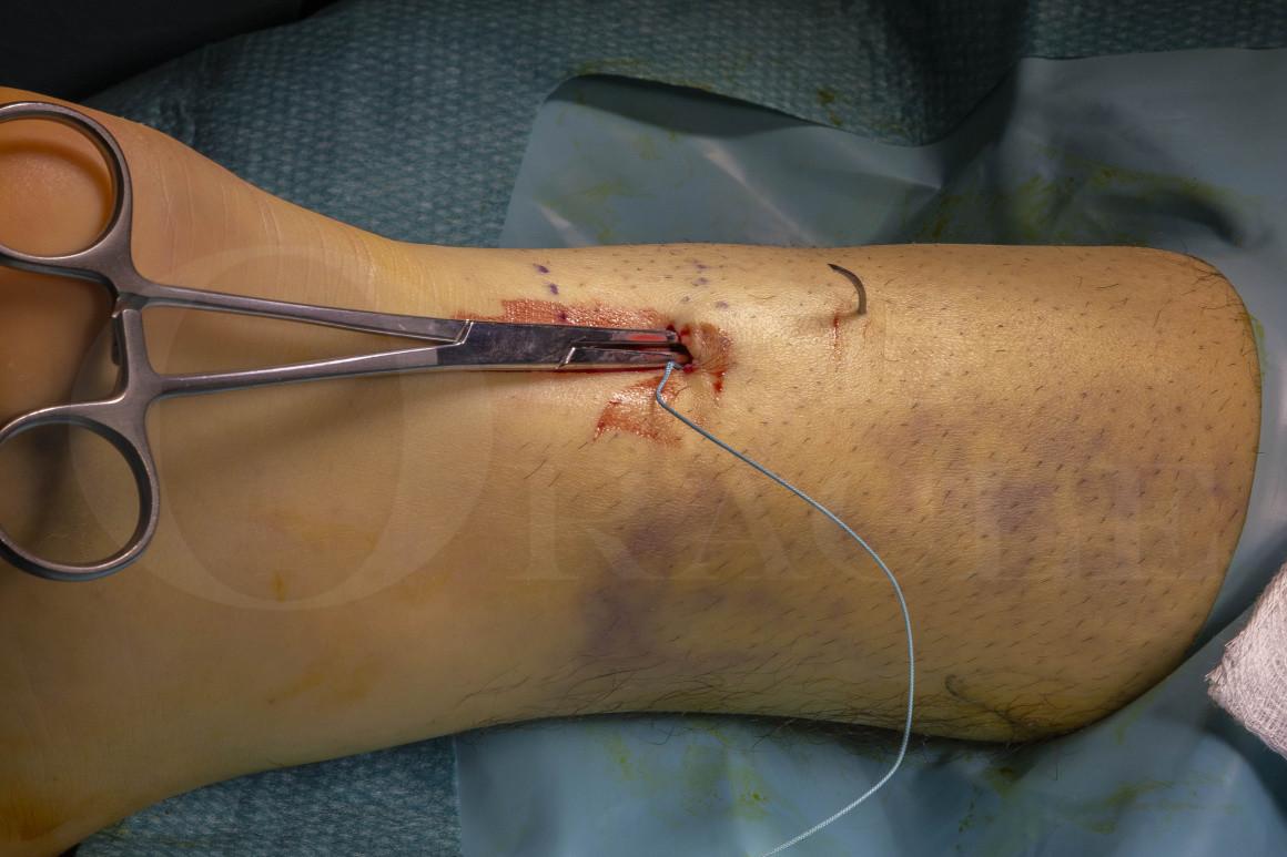 Achilles tendon rupture: Minimally invasive repair