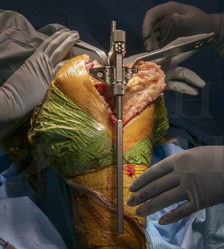 Total Knee replacement: Zimmer Biomet Nexgen rotating hinge replacement