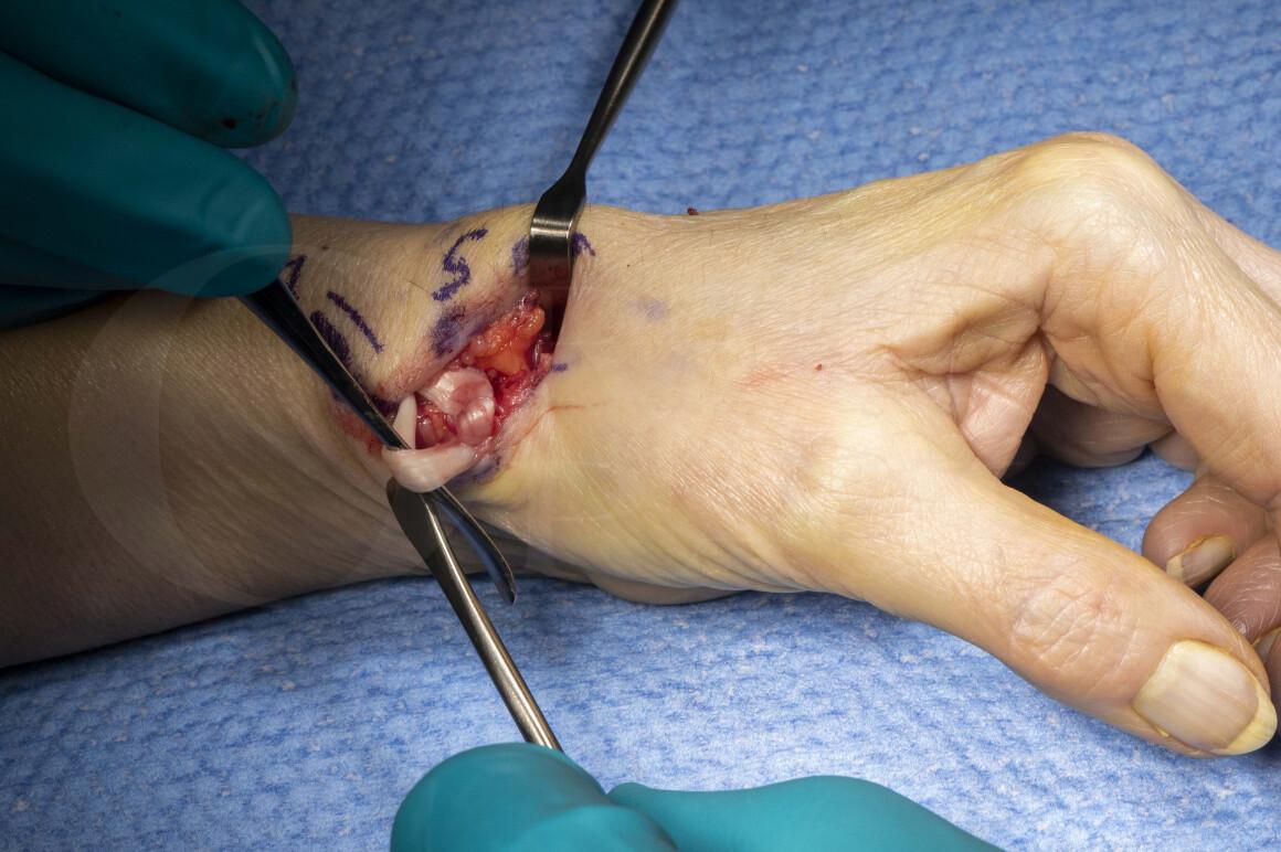 Trapeziectomy and Abductor pollicis longus suspensionplasty