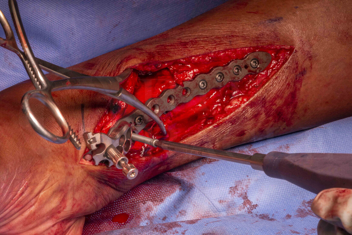 Distal tibial fracture: open reduction internal fixation with Stryker AxSOS 3 plate